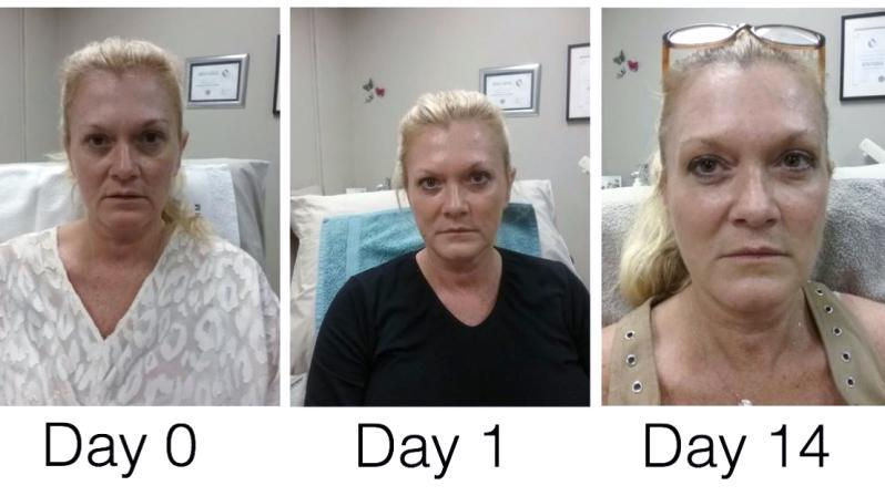 Botox in Cape Town